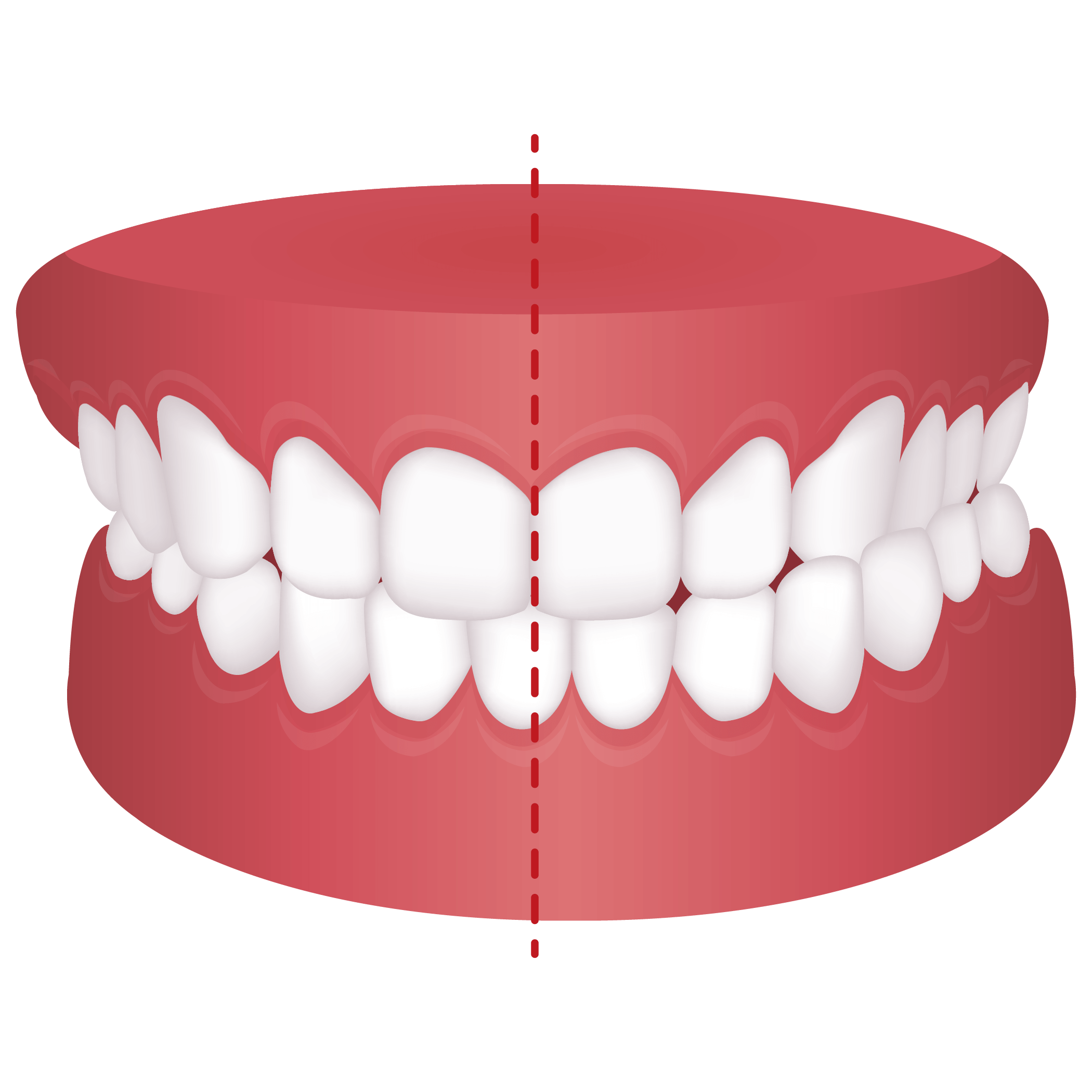 Mouth with crossbite