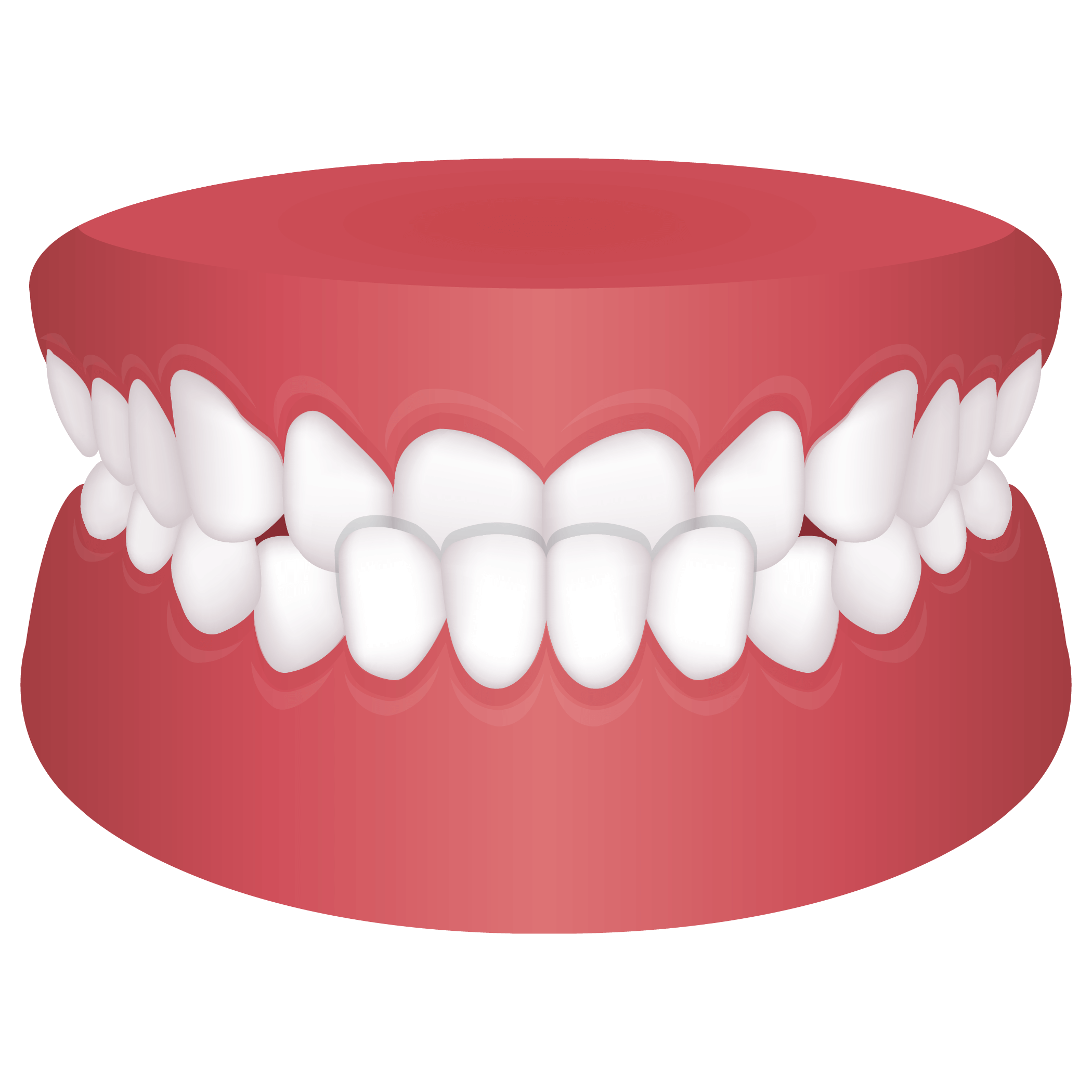 Mouth with underbite
