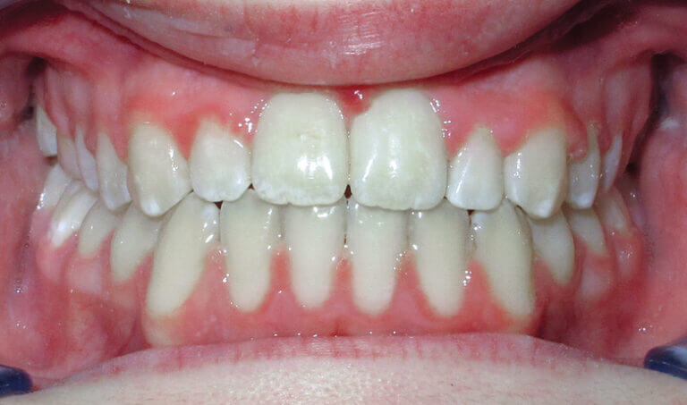 After Patient with an anterior, posterior openbite