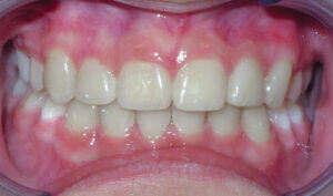 After Patient with crowding, crossbite and mismatched midlines