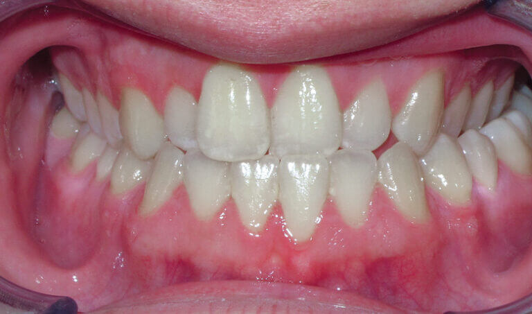 After Patient with crossbite and underbite tendency