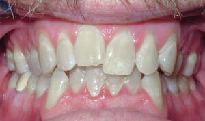 Before: Patient with crowding and an overbite