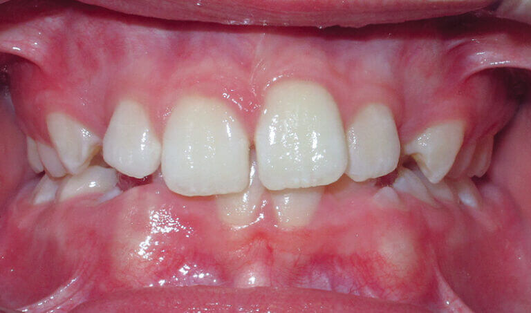 After Patient with crowding and an overbite