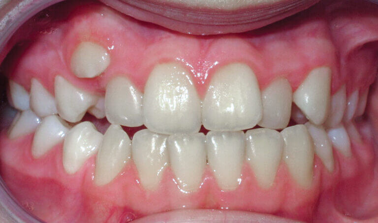 After Patient with an anterior crossbite, crowding and underbite tendency