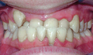 Before: Patient with a crossbite, underbite, and crowding