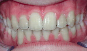 After: Patient with a crossbite and crowding