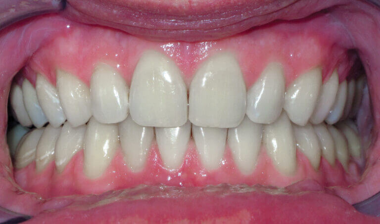 After Patient with an overbite