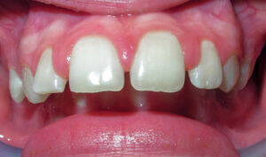 Before: Patient with an overbite, spacing and protrusion