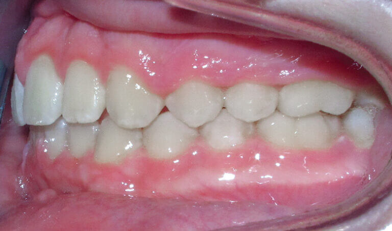 After Patient with an overbite and protrusion