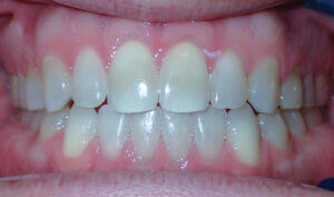 After: Patient with spacing and an anterior openbite