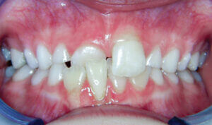 After Patient with crowding and an anterior crossbite