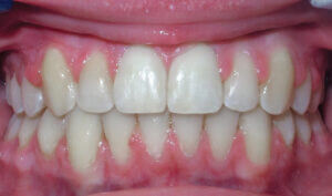 After: Patient with crowding and an anterior crossbite