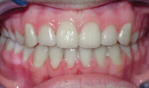 After Patient with crowding and an underbite
