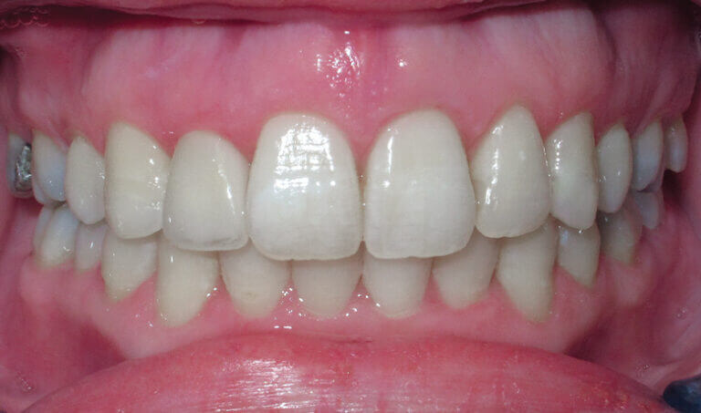 After Patient with a crossbite, openbite and crowding