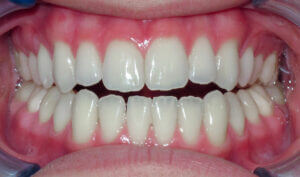 After Patient with an anterior openbite