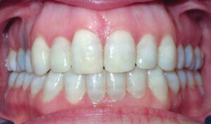 After Patient with crowding, openbite and mismatched midlines