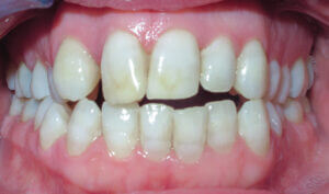 Before: Patient with crowding, openbite and mismatched midlines