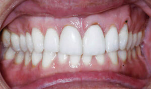 Before: Patient with overbite and crowding