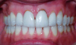 After: Patient with overbite and crowding