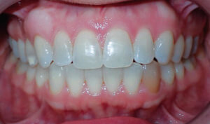 After: Patient with openbite and crowding
