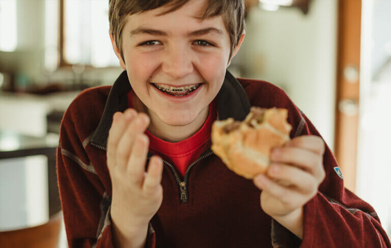 Boy smiling with braces holding a burger